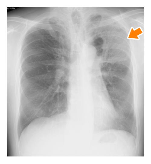 肺炎 レントゲン 肺炎になるとレントゲンに白い影が見えるのは何故?